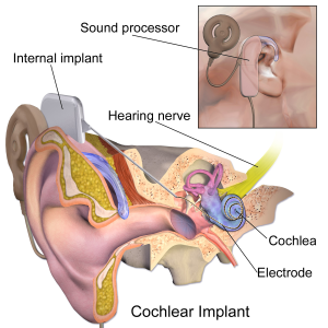 CI-implantat principskiss